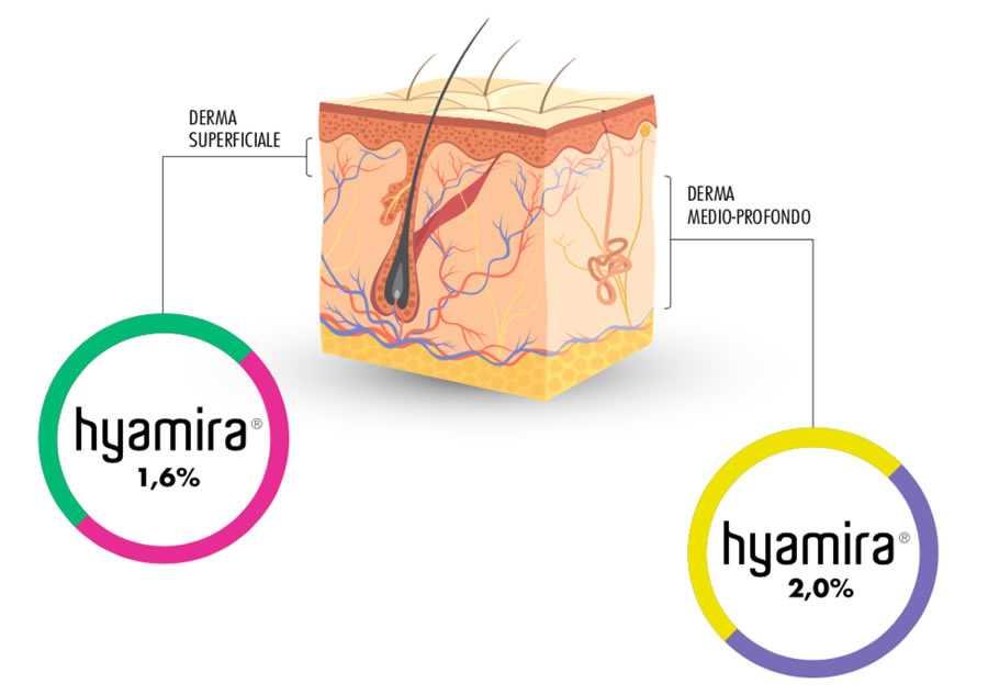 Filler Epidermis Dermis